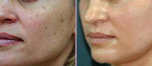 лазерный пилинг фото до и после отзывы