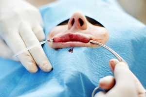 ИмплантыPerma Lip применяют для увеличения губ.