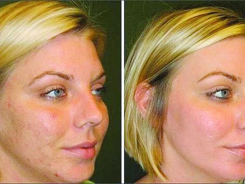 Пилинг лица после ботокса