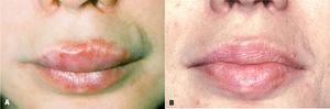 Побочные эффекты после контурной пластики губ