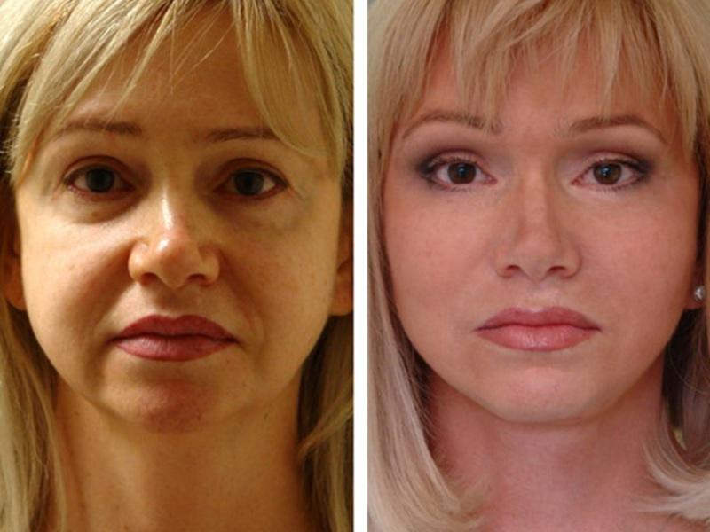 Малярные мешки на лице: причины возникновения суф