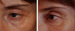 Коррекция области вокруг глаз