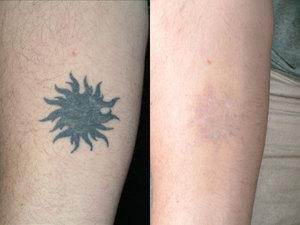 Картинки по запросу фото татуировок до и после