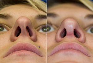 Исправление перегородки носа лазером