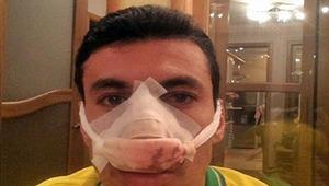 Если человек сломал нос, ему требуется медицинская помощь