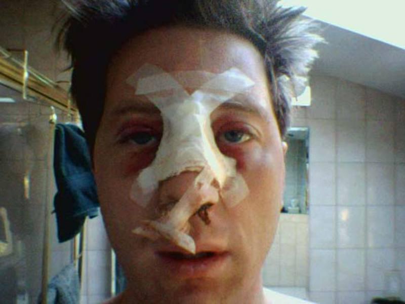 Перелом носа может привести не только к некрасивому смещению, но также к трудностям с дыханием.