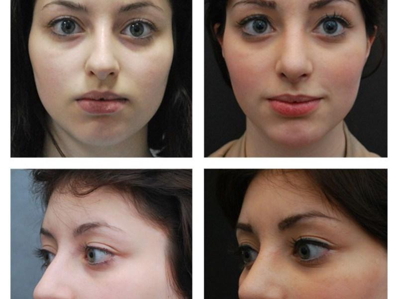 Ринопластика - фото до и после пластики носа