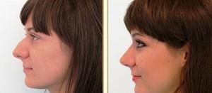 Горбинка на носу может стать настоящей проблемой, если у человека в связи с этим появляются комплексы.