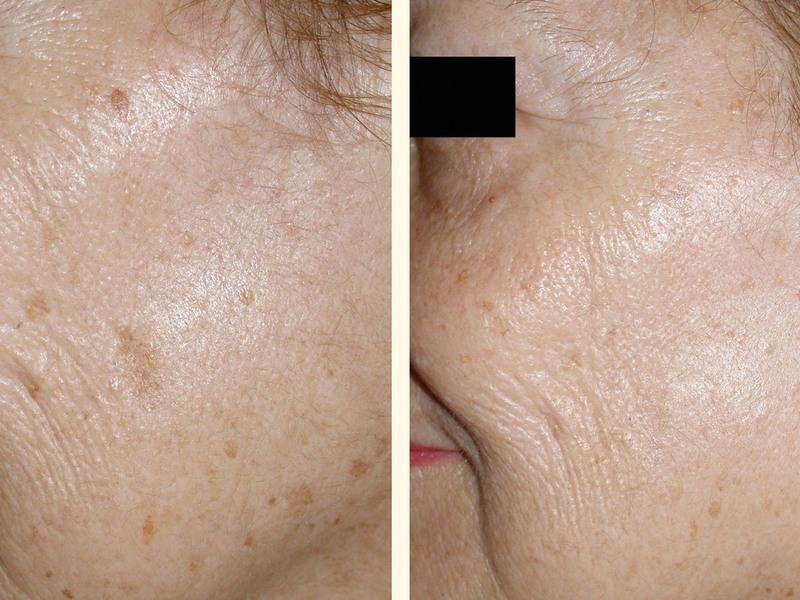 Чем отбелить пигментное пятно на лице в домашних условиях 482