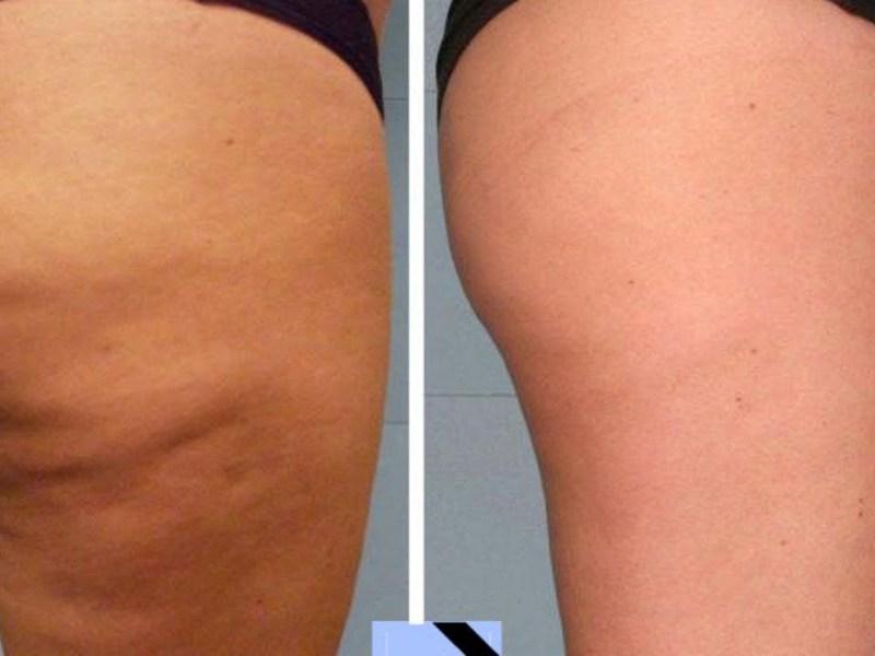 Похудеть в лице до и после