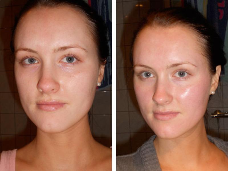 До и после проведения химического пилинга