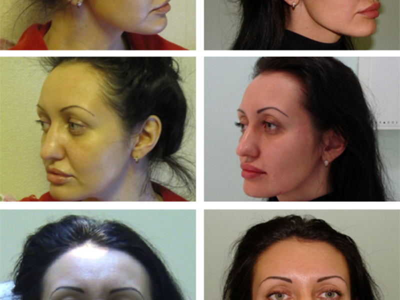 Проведение процедуры в косметологическом кабинете