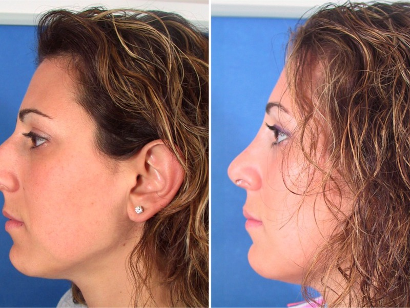 Накладки для коррекции носа