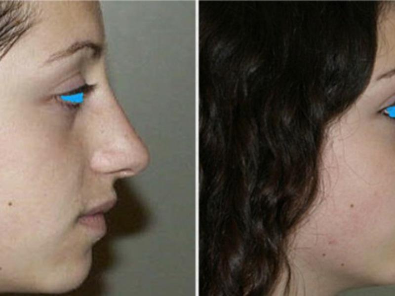 Сколько длится ринопластика носа