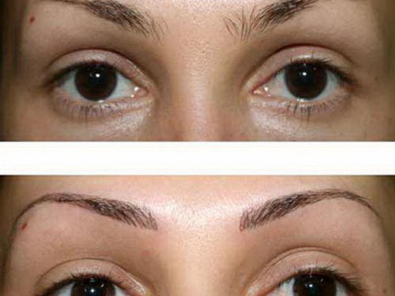Могут ли быть осложнения после перманентного макияжа