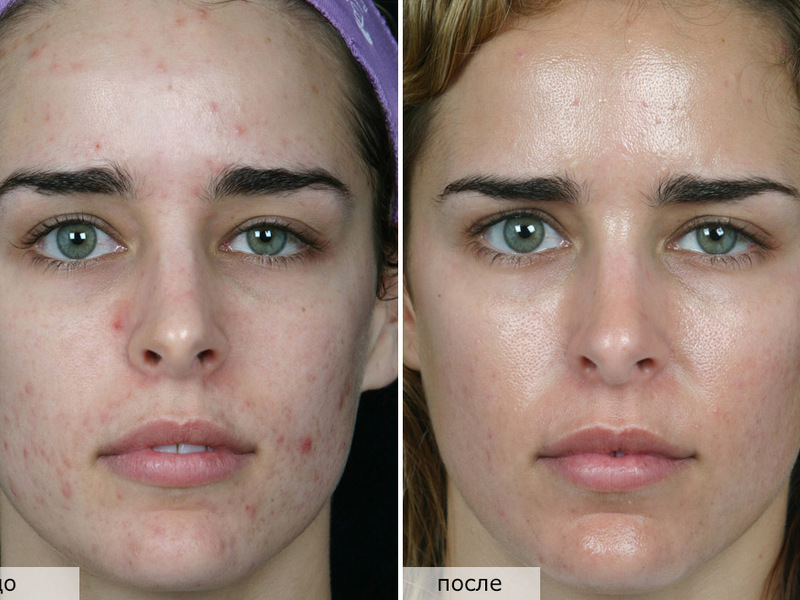 атравматическая чистка лица до и после фото отзывы