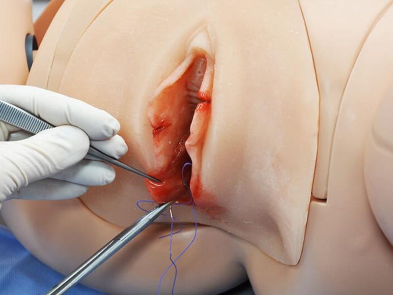 Разрезание пизды вагины влагалища видео фото137