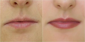Уход за губами после перманентного макияжа