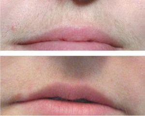 Фотоэпиляция на лице отзывы побочные эффекты Лечение волос Комбинатская улица Чебоксары