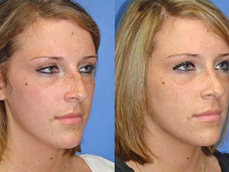 Безоперационная ринопластика носа: эффективность изменения формы, отзывы о коррекции, фото до и после