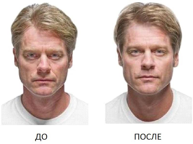 Как сделать лицо подтянутым для мужчин