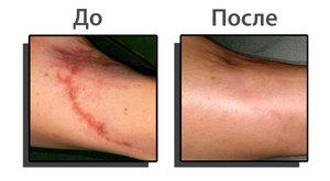 удаление рубцов лазером до и после фото