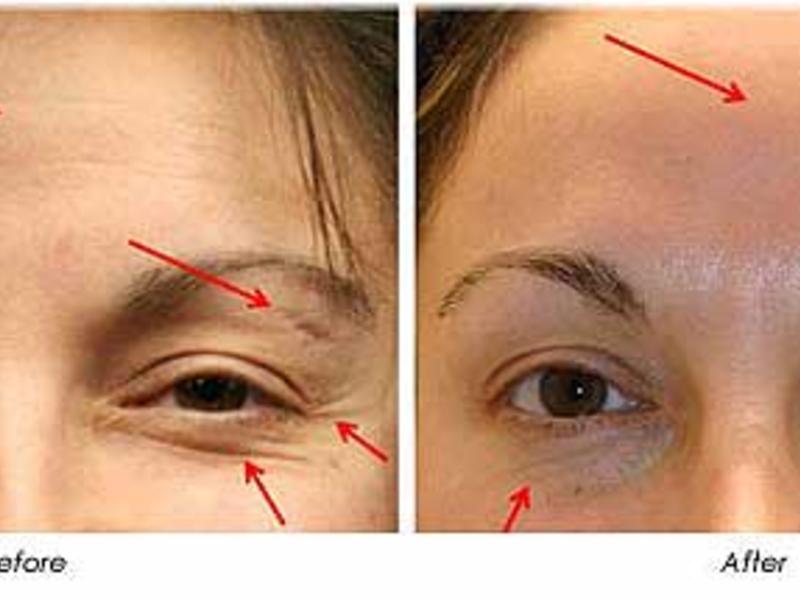 dot laser treatment essay