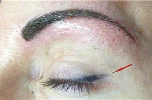 Последствия после перманентного макияжа глаз