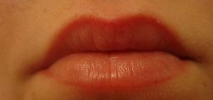 После перманентного макияжа губ