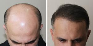 Форум пересадка волос отзывы